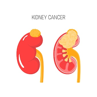 Kidney cancer concept in flat style