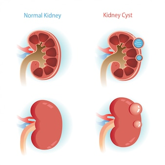 Kidney cyst step diagram.