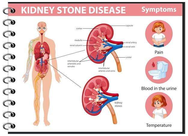 Болезнь почечных камней и симптомы инфографики