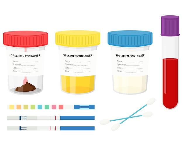 실험실 테스트. 색깔이 있는 뚜껑이 있는 플라스틱 병에 소변, 대변, 정액 및 혈액을 테스트하십시오.
