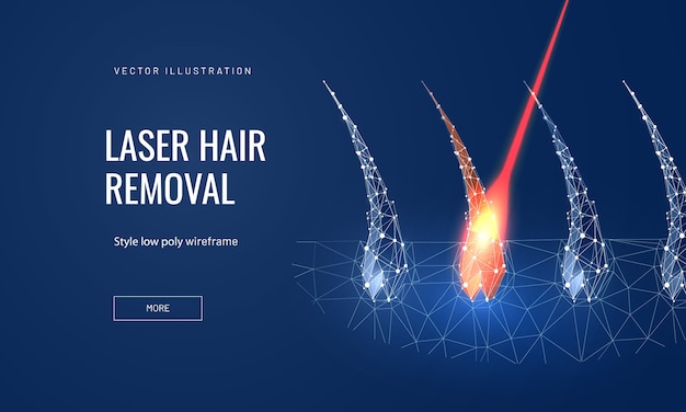 Laser hair removal concept in polygonal futuristic style for landing page