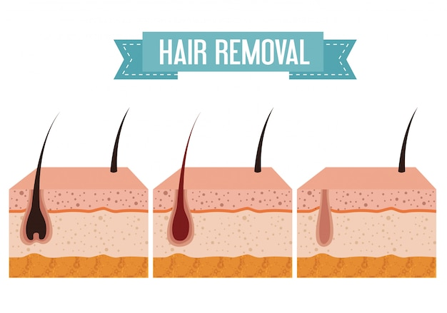 Layers skin structure with hair removal elements