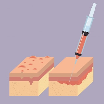 Layers of skin with botox injection