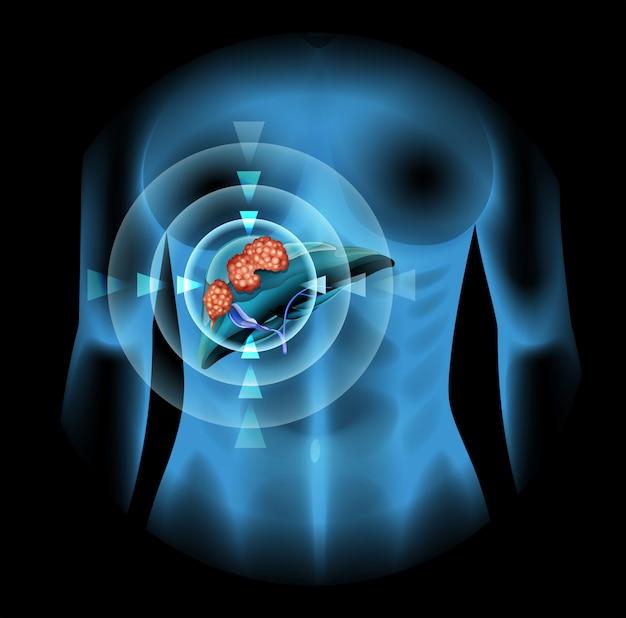 人体の肝臓がんの図