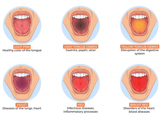 Llustration of diagnosis of different diseases by the color of the tongue