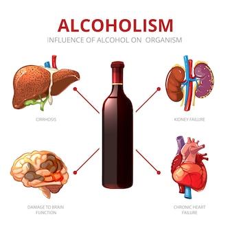 Долгосрочные эффекты алкоголя. функция организма и повреждение головного мозга, иллюстрация отказа почек. алкоголизм вектор инфографики