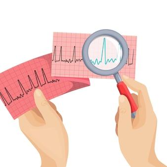 흰색의 둥근 그림에 인간의 손이 쥐고있는 돋보기를 통해 심방 세동을보십시오. 부적절한 심장 작동, 응급 심장학의 ecg 체계가있는 긴 종이.