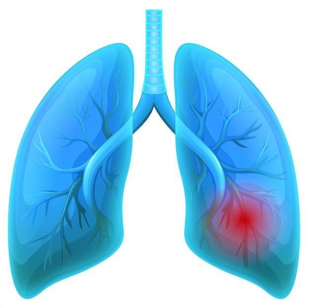 Заболевания легких на белом фоне