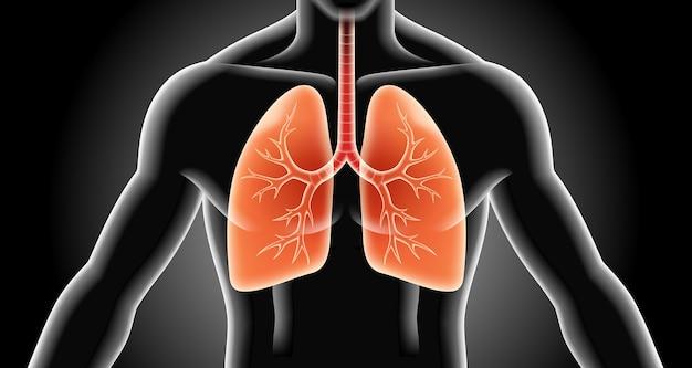 肺のx線イラスト
