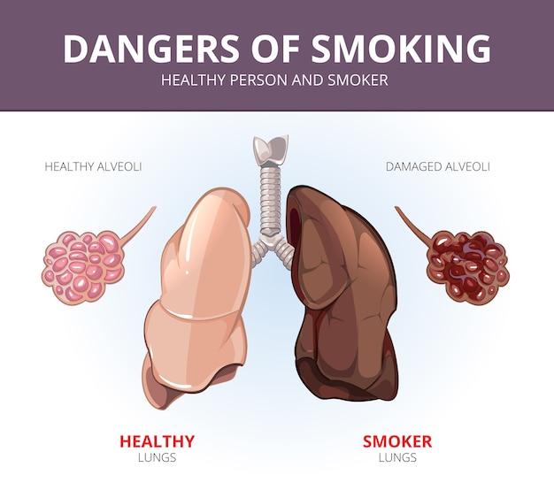건강한 사람과 흡연자의 폐와 폐포. 장기 그림, 해부학 호흡기, 과학 및 질병. 벡터 의료 다이어그램