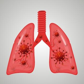 Lungs coronavirus infection