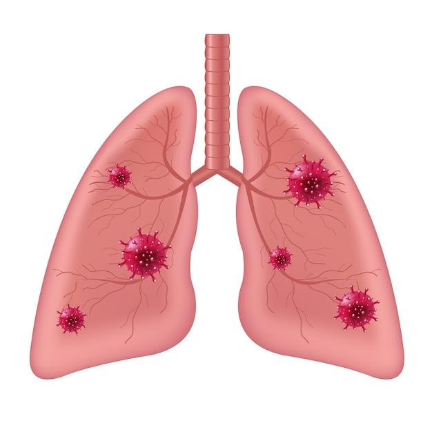 고립 된 코로나 바이러스와 폐 인간의 내부 장기