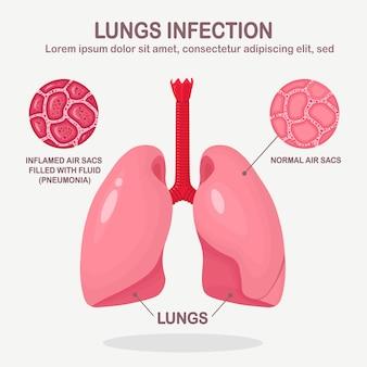 白い背景で隔離の呼吸器感染症の肺。肺炎、結核、がんの概念。液体で満たされた正常で炎症を起こした空気嚢。漫画デザイン