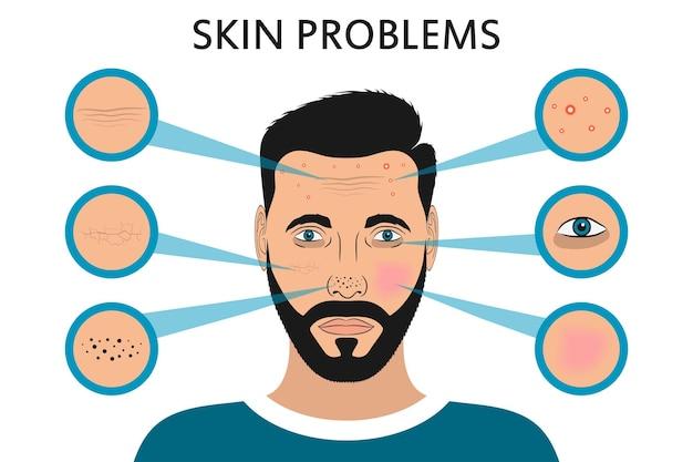 男性の顔の皮膚の問題にきびとにきび黒い斑点目の下の赤み乾燥円