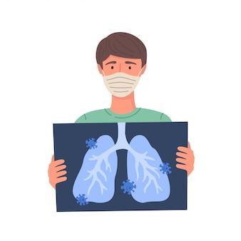 남자는 코로나 바이러스에 걸립니다. 코로나 바이러스 감염증 -19 : 코로나 19. 남자는 폐 엑스레이를 보유하고 있습니다.