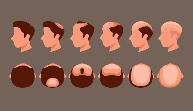 Man head with hairloss problem in side and top view symbol set illustration vector