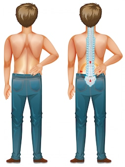 Человек показывает боль в спине на белом фоне