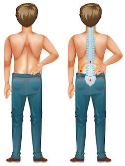 Uomo che mostra dolore alla schiena su fondo bianco