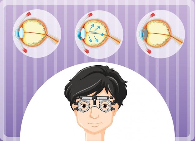 眼鏡と目の問題を持つ男