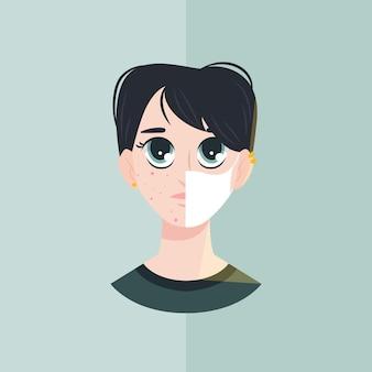 Concetto di maskne