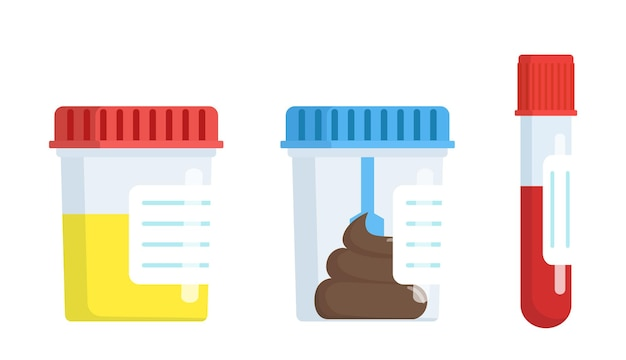 Medical analysis laboratory test urine stool and blood in plastic jars with colored lids.
