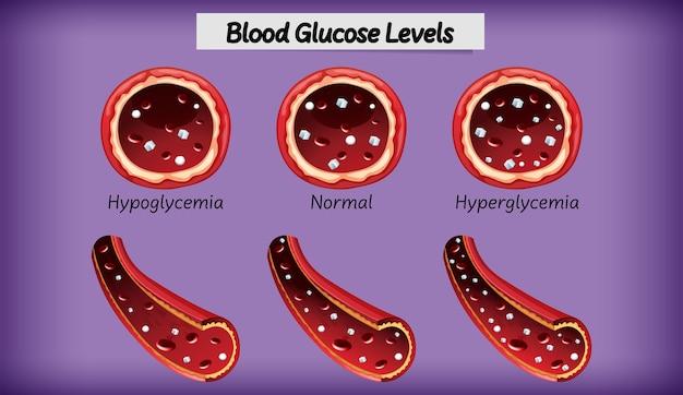 Медицинский уровень глюкозы в крови