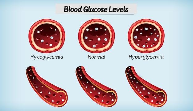 Livello di glucosio nel sangue medico