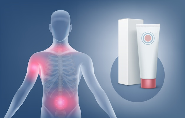 관절 치료를 위해 연고 또는 젤을 바르는 의료 삽화