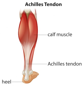 Medical infographic of achilles tendon