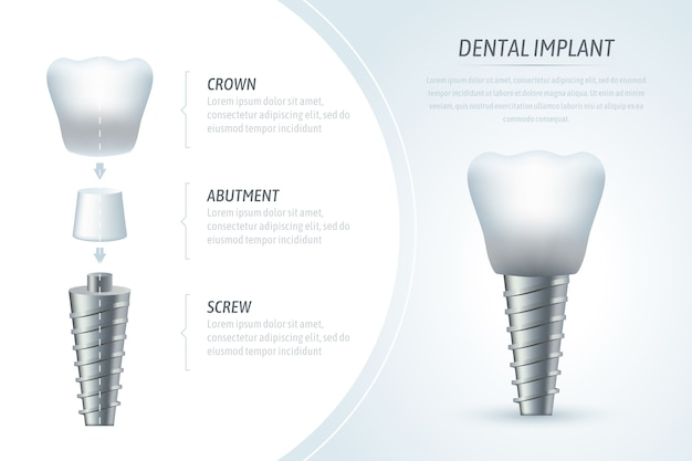 Medical infographic template and dental implant