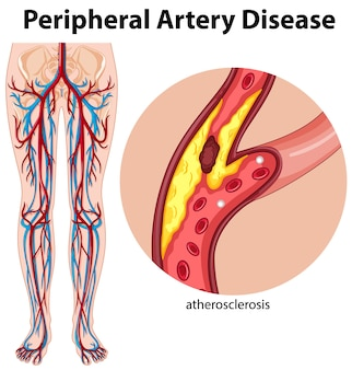 Medical peripheral artery disease