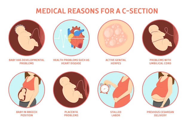 Medical reasons for cesarean delivery or c-section. medical surgery and abdominal incision. stalled labor and herpes, problem with placenta.   illustration