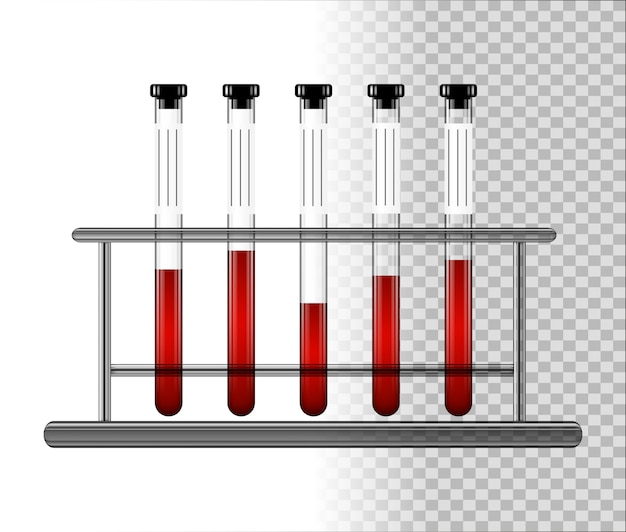 Medical test tubes with blood in rack. transparent glass flasks with cap.