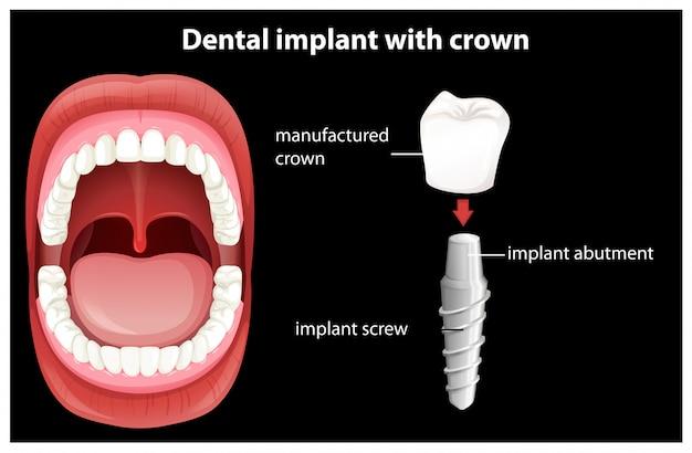 Медицинский вектор имплантации зубов