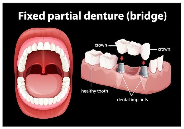 固定部分義歯の医療用ベクター