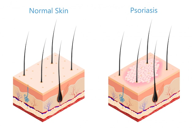 Medicine problem skin psoriasis