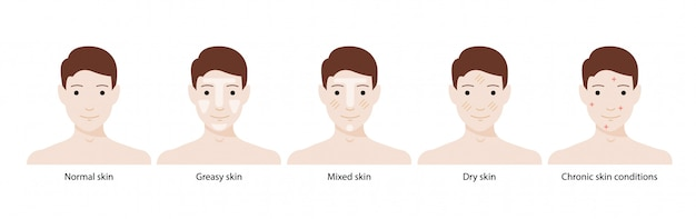 Men`s types of skin: normal, greasy, mixed, dry skins and chronic skin conditions