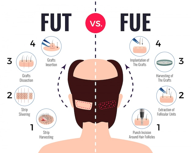 Methods of hair transplantation fut vs fue poster with infographic elements on white