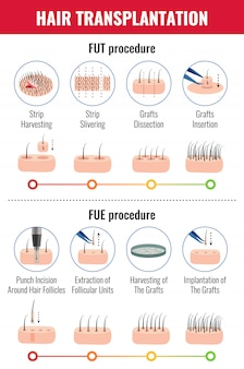 Methods of hair transplantation with stages of procedure infographics on white