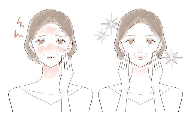 顔の炎症に苦しんでいる中年の女性。前後。白い背景に。