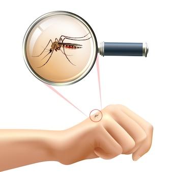 Zanzara a portata di mano