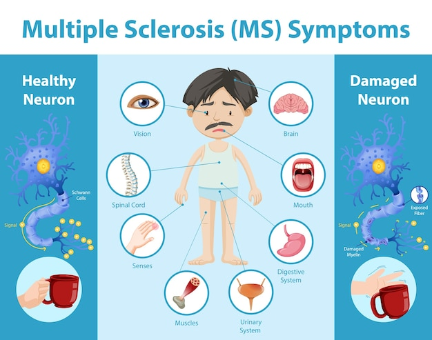 Multiple sclerosis (ms) symptoms information infographic
