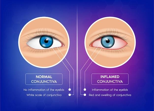 정상 결막 및 결막염 건강한 눈과 분홍색 눈