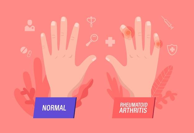 Normal and sick hands with rheumatoid arthritis