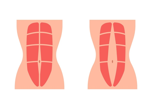 Normal tone muscle abdomen and diastasis recti weak and divergence abdomen muscle