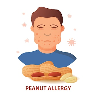 Nut allergy symptoms problem .swollen man character.anaphylaxis person concept.allergic reaction to peanuts.
