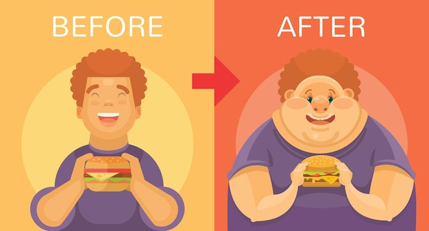 Obesity vector flat illustration