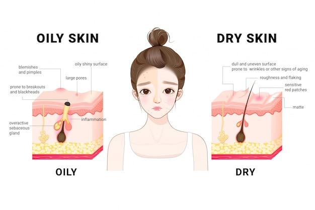 オイリーで乾燥した肌。違う。人間の皮膚のタイプと状態。皮膚の概略断面図。