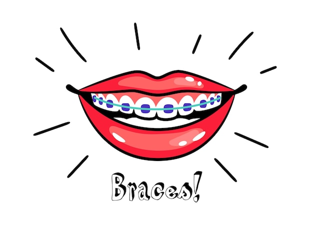 矯正ブレース。歯列矯正器を使った漫画の笑顔、正しい歯の噛み合わせ、医療用歯科矯正アラインのベクトル図、口の中の歯の治療