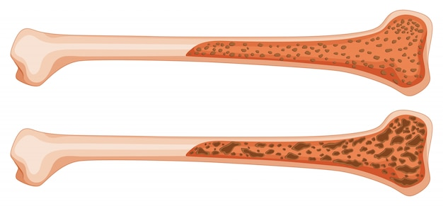 Остеопороз в кости человека